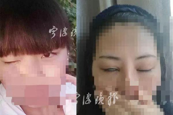 Mất 100 triệu đồng cắt mí, cô gái 20 tuổi không thể nhắm mắt khi ngủ
