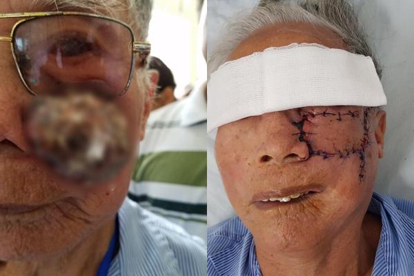 Người đàn ông Hà Nam phải khoét một bên má vì ung thư