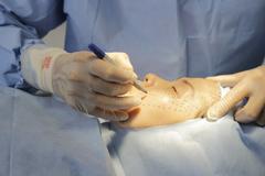 Phẫu thuật căng da mặt được nhiều chị em ưa chuộng nguy hiểm thế nào?