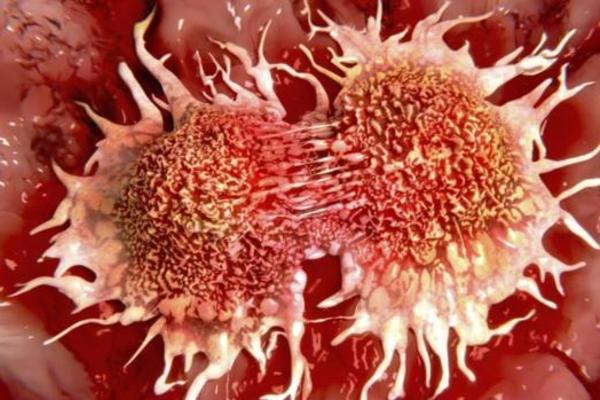 ung thư xương,Viagra