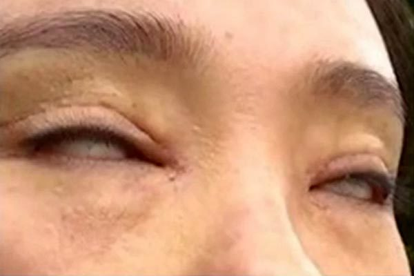 Phát hoảng vì không thể nhắm kín mắt sau thẩm mỹ hai mí