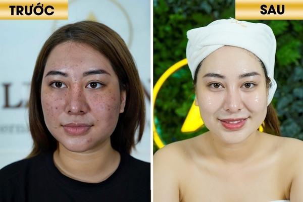 Phụ nữ 30 rộ xu hướng trẻ hóa da không phẫu thuật
