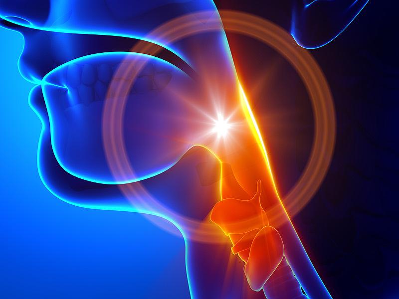 Những dấu hiệu dễ nhầm lẫn của ung thư vòm họng
