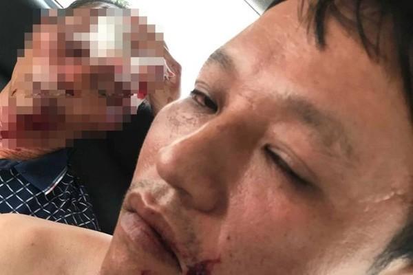 Côn đồ xả súng gia đình đang ăn cơm ở Thanh Hóa, 3 người bị thương