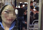 Nữ nhân viên xe buýt bị 4 hành khách đánh nhập viện đúng ngày 20/10