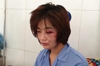 Khởi tố, truy bắt nhóm thanh niên đánh nữ nhân viên xe buýt ở Hà Nội