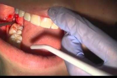 Nhổ chục cái răng, nữ bệnh nhân chảy máu tới chết