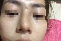 Giấu mẹ đi nâng mũi giá 2 triệu lại được trả góp, bé gái 13 tuổi ở Yên Bái bị mù một bên mắt