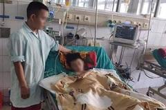 Cậu bé 12 tuổi ở Nghệ An phải cắt cụt tay do bị điện giật