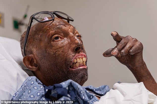 Người đàn ông thay đổi toàn bộ diện mạo sau khi ghép mặt
