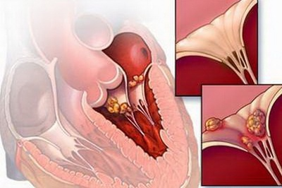 Viện trưởng Viện Tim mạch Quốc gia khẳng định không có virus viêm cơ tim