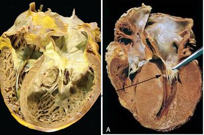 Hà Nội thông báo kết quả điều tra dịch tễ 2 ca tử vong do viêm cơ tim