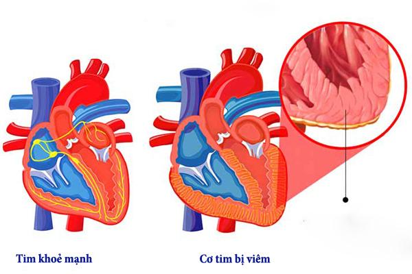 viêm cơ tim,virus viêm cơ tim