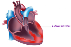 Triệu chứng dễ bỏ qua khiến 2 phụ nữ Hà Nội tử vong do viêm cơ tim