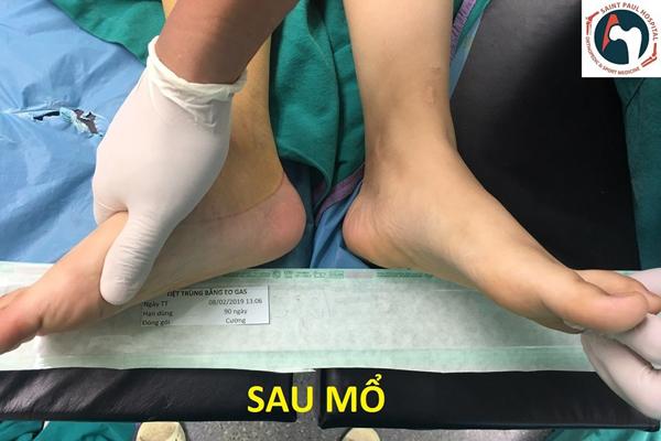 Nữ sinh Hưng Yên liệt chân do mắc căn bệnh của người già