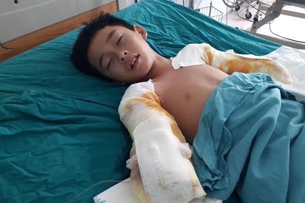 Nhói lòng cảnh bé trai bị điện giật cắt cụt hai cánh tay, nguy cơ còn hoại tử