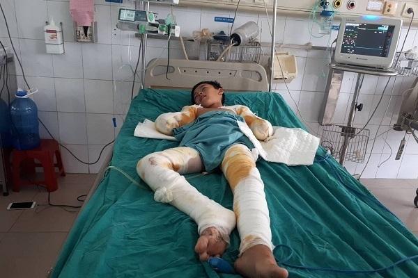 Hoàn cảnh khó khăn,Tai nạn bỏng,Từ thiện VietNamNet