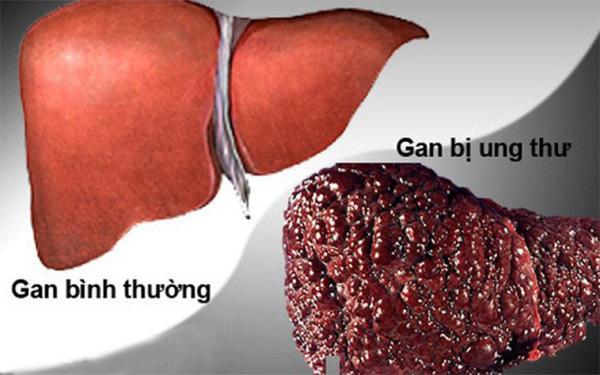 Bệnh gan khó tránh khi 'quá chén'