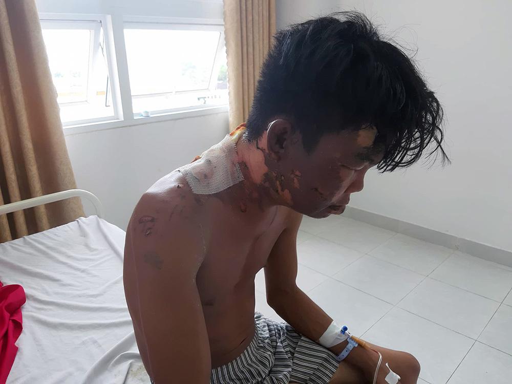 Thanh niên ở Vĩnh Long bị chị gái đổ nước sôi lên đầu