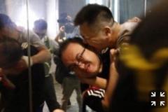 Nghị sĩ Hong Kong bịtấn công, cắn đứt tai giữa cuộc biểu tình