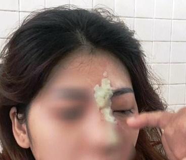 Cô gái 21 tuổi mù mắt sau khi tiêm filler nâng mũi