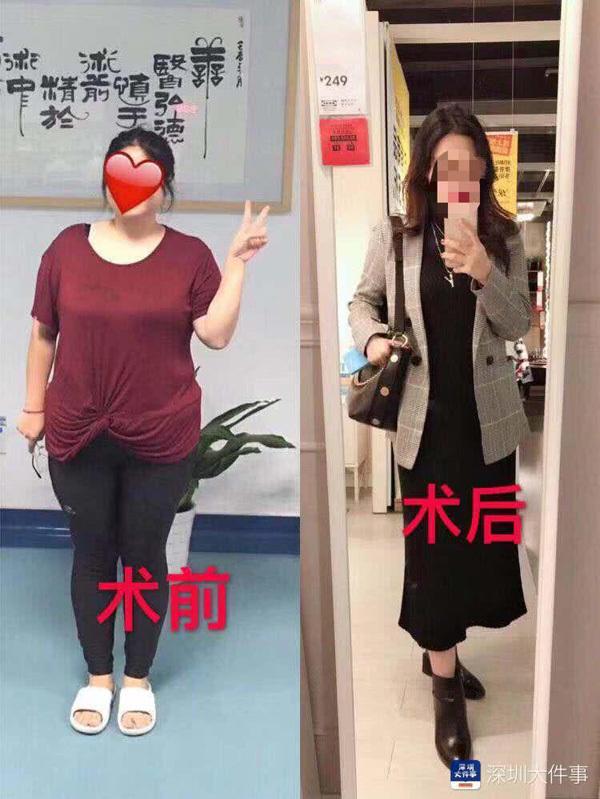Nặng 100kg và không thể mang thai, cô gái cắt nhỏ dạ dày để giảm cân