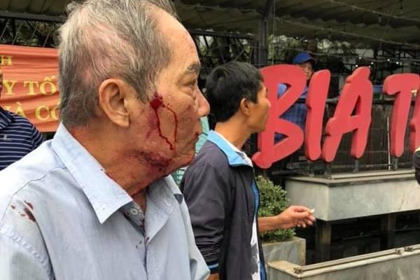 Cụ ông 80 tuổi ở Hà Nội bị gã xe ôm đánh, bắn súng cao su vào mặt