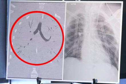 Vận động viên 17 tuổi phổi 'cạn sạch' không khí, phải thay vì thuốc lá điện tử