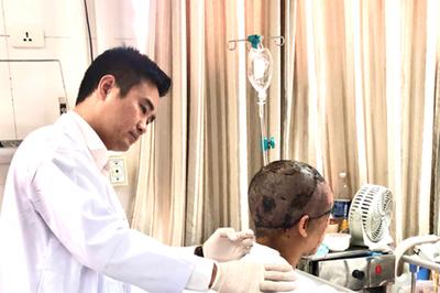 Người phụ nữ bị lột rời toàn bộ da đầu và nửa mặt do tóc cuốn vào máy
