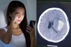 Vừa nằm vừa dùng điện thoại, người phụ nữ bị chảy máu não, liệt nửa người
