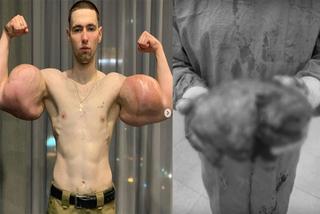 Bơm 3 lít dầu vào tay, thanh niên 23 tuổi bị thối hết cơ bắp
