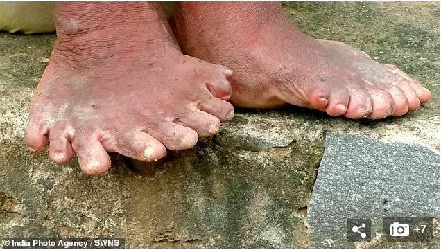 'Quái nhân' có 20 ngón chân, 12 ngón tay