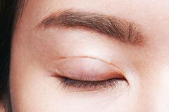 Cô gái trẻ không thể nhắm mắt sau phẫu thuật cắt mí