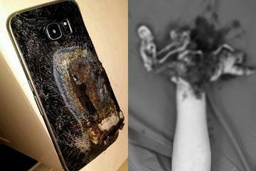 Vừa dùng vừa sạc điện thoại, nam thanh niên 16 tuổi nát tay phải cắt cụt
