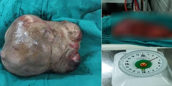 Giải thoát khối u nặng hơn 3 kg trên cổ người phụ nữ suốt 25 năm