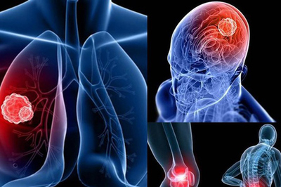 Ho mãi không khỏi, bác sĩ thông báo chỉ còn sống vài tháng vì mắc 3 ung thư cùng lúc