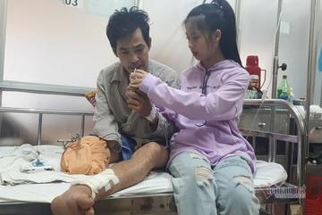 Xót cảnh bé gái xinh như hotgirl phải bỏ học, chăm cha bị cụt chân lẫn tay