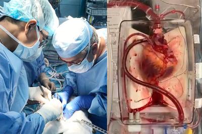 Bác sĩ hồi sinh được trái tim người chết, mở ra đột phá y học trong ghép tạng
