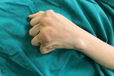 Người phụ nữ Hà Nội không thể chải đầu, cầm bát ăn cơm vì bệnh phổ biến