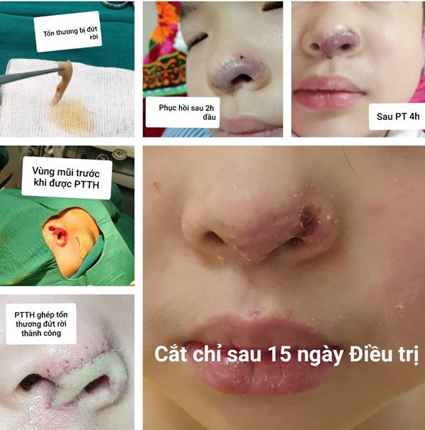 Lục tung thùng rác tìm phần mũi đứt rời ghép cho bé gái 5 tuổi