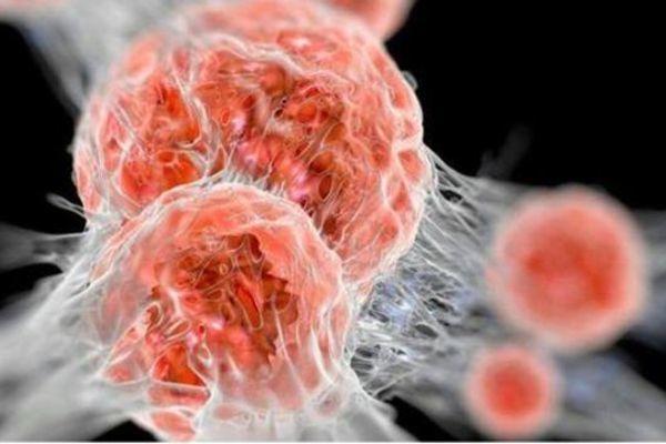 Bác sĩ chỉ ra 5 cách tự phân biệt khối u lành tính và ác tính