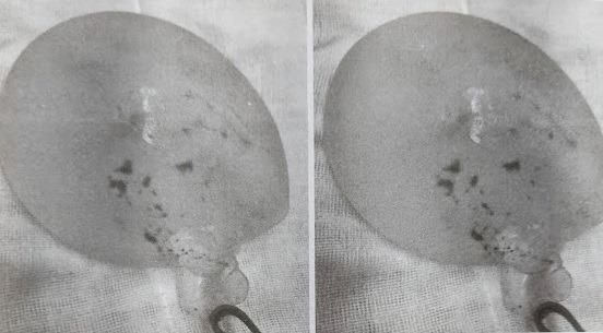 Cô gái trẻ ở TP.HCM bị vỡ túi độn ngực nhưng không hề hay biết