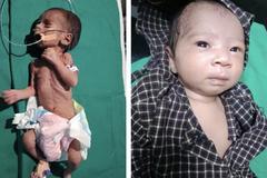 Bị chôn sâu 90cm, bé gái 1kg vẫn sống sót kỳ diệu nhờ lớp mỡ nâu trong cơ thể