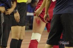 Cảm phục trước hình ảnh nữ cầu thủ chân rướm máu vẫn thi đấu