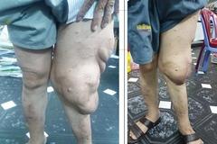 Giải cứu'chân voi' cho người đàn ông có khối bướu nặng 2,5 kg