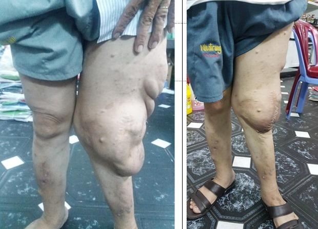 Giải cứu'chân voi' cho người đàn ông có khối bướu nặng 2,5 kg - kết quả xổ số đồng tháp