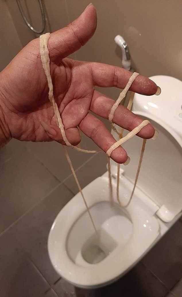 'Bắt sống' sán dây dài chục mét ra khỏi cơ thể