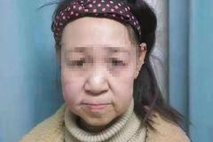 Có gương mặt như cụ bà 60, cô gái 15 tuổi phải bỏ học giữa chừng