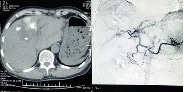 Bệnh nhân ở Hà Nội bị ung thư gan, khối u vỡ nát trong bụng