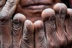 Bộ lạc tự cắt ngón tay khi người thân qua đời, ngủ cùng xác ướp